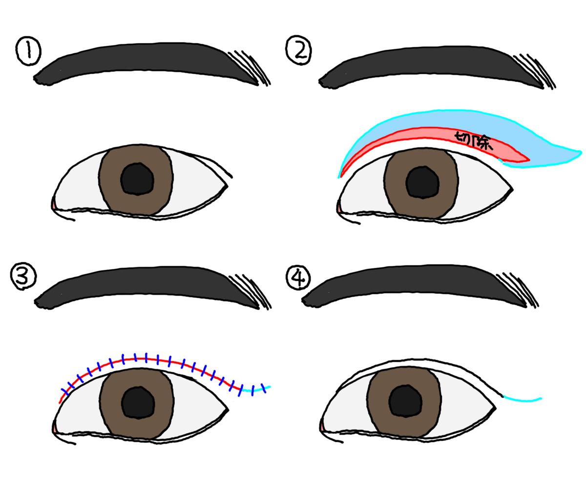 重瞼線部皮膚切除術